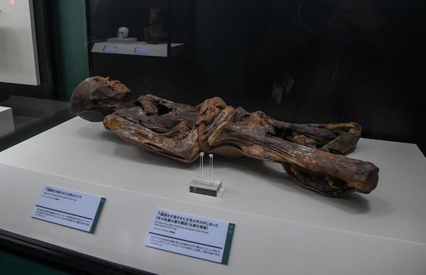 手前/《下腹部を交差させた女性の手の中にあった2本の乳歯の復元模型(光硬化樹脂)》 奥/《下腹部を交差させた女性のミイラ》 ともに、ペルー中央海岸、先コロンブス期チャンカイ文化 1390年頃-1460年頃 ライス・エンゲルホルン博物館